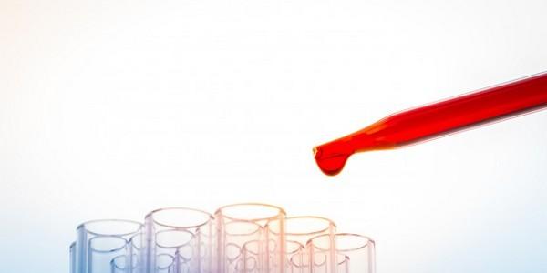 ماجستير في العلوم في مجال التكنولوجيا الحيوية